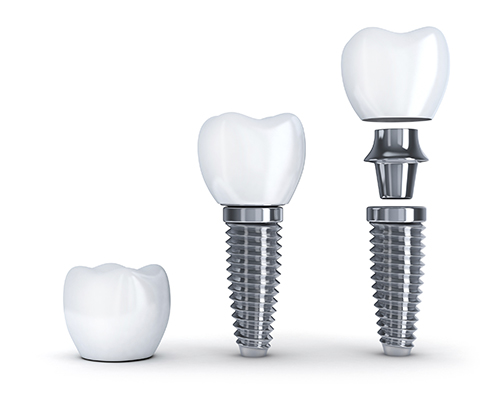 The pieces of a dental implant: crown, abutment, and implant screw