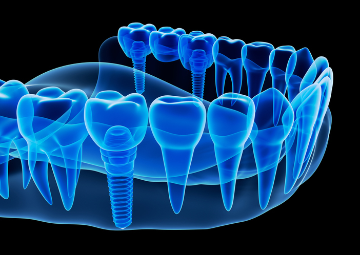 Rendering of dental implants from Bay Lakes Center for Complex Dentistry in Escanaba, MI.